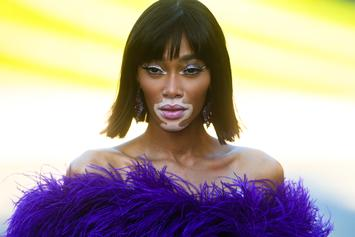Winnie Harlow Takes Her Top Off In Stunning New Photos